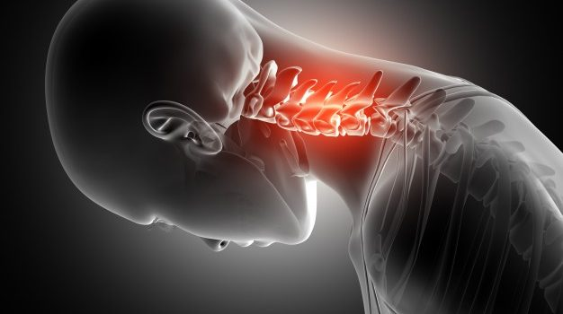 How to treat a Neck pain?