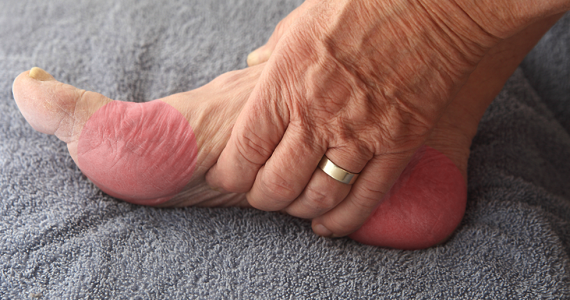 Peripheral Neuropathy Treatment Center