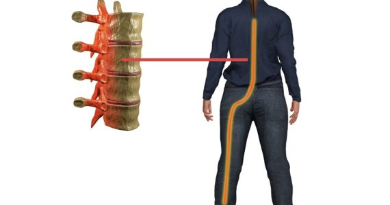 Are You Suffering from Sciatica Pain?