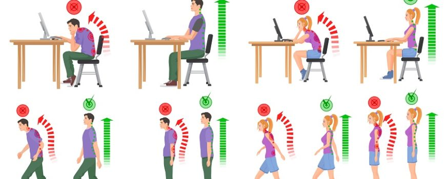 Posture Syndrome